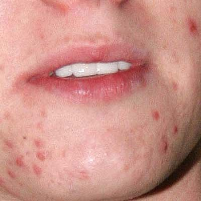 Difference Between Acne And Pimples